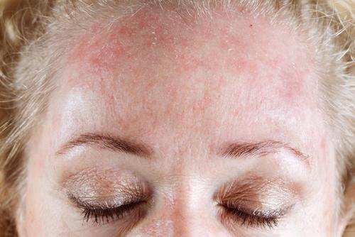 Droge huid overgang